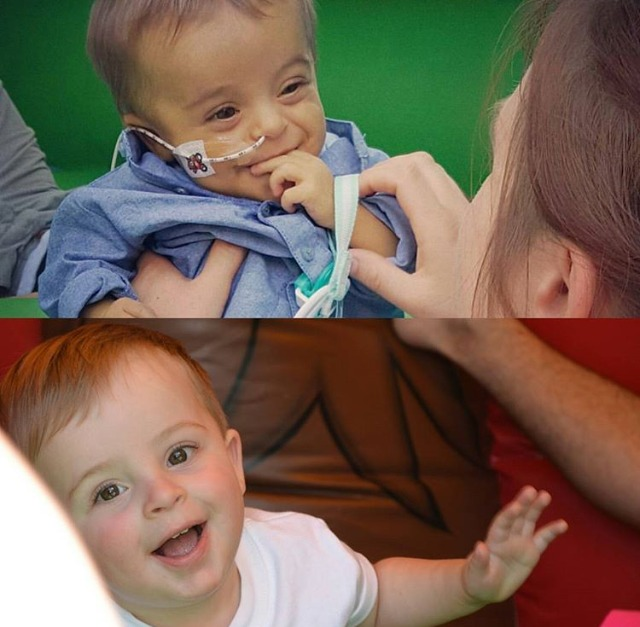 Ethan before and after his transplant.